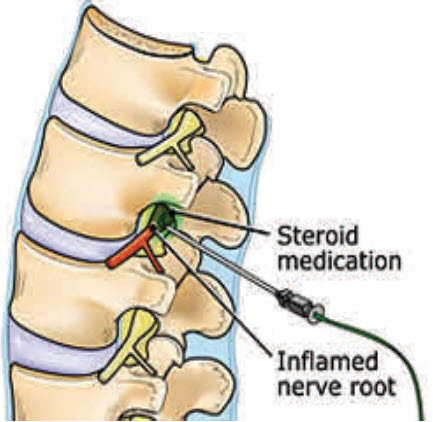 A selective nerve root block showing the cortisone (here in green) being injected around a nerve root as it exits the neural foramen. Don't try this at home.